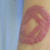 Pourquoi le tatouage peut comporter des risques d'infections