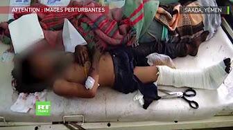 Yémen : au moins 29 enfants tués dans une attaque contre un bus (images choquantes)