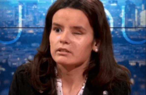 Fiorina Lignier, Gilet Jaune, 20 ans, éborgnée par la police de Castaner (ENTRETIEN)