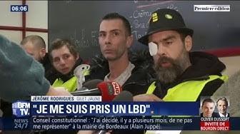 """""""Je me suis pris un LBD."""" Jérôme Rodrigues réaffirme avoir été victime de violence policière (VIDÉO)"""
